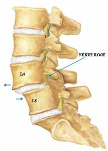 mild retrolisthesis spine What is retrolisthesis this is a medical condition in which a vertebra in your spine becomes displaced and moves forward or backward in most instances of vertebrae.