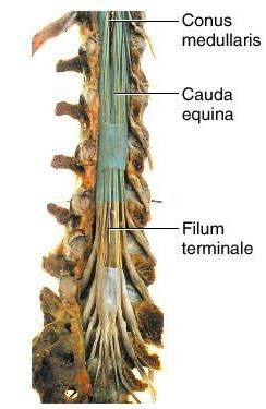 Conus Medullaris The filum terminale helps to anchor the spinal cord in place. conus medullaris