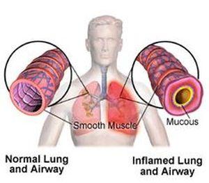 Pneumonitis Natural Treatment