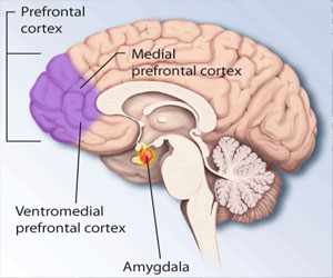 Prefrontal Cortex - MedFriendly.com