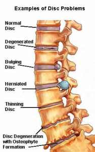 Spondylosis: Signs, Symptoms, Treatment - MedFriendly.com