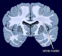 Periventricular White Matter (PVWM) - MedFriendly com