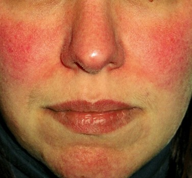 Cure photo facial burn